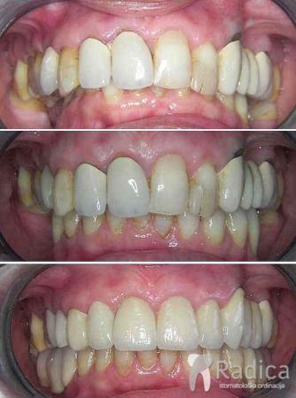 predprotetska-ortodoncija-1