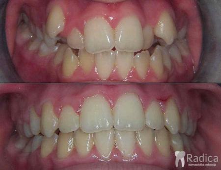 fiksna-ortodontska-terapija-kompresija-bez-ekstrakcije-3