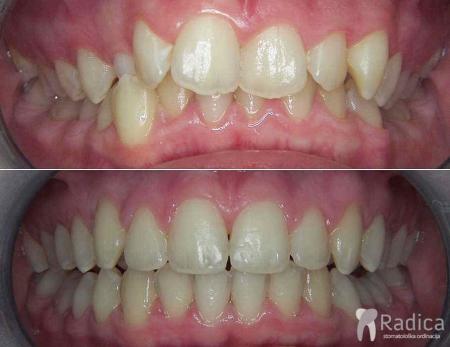 fiksna-ortodontska-terapija-kompresija-bez-ekstrakcije-4