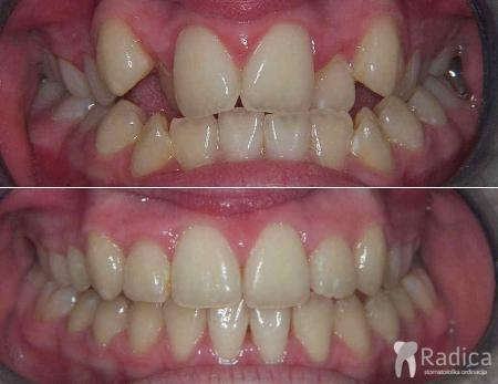 fiksna-ortodontska-terapija-kompresija