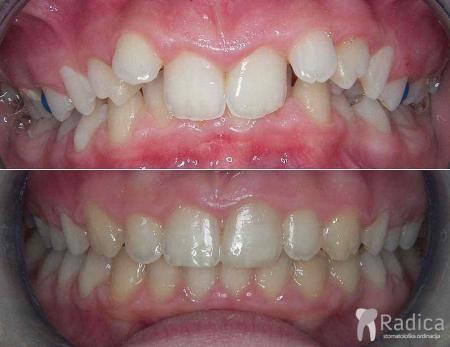 ortodontska-terapija-dubokog-zagriza-1