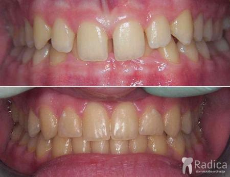ortodontska-terapija-dubokog-zagriza-2