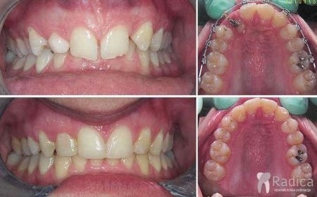 ortodontska-terapija-dubokog-zagriza-4