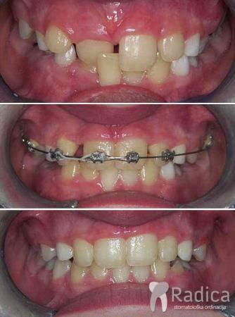 ortodontska-terapija-fiksna-mjesovita-denticija-2