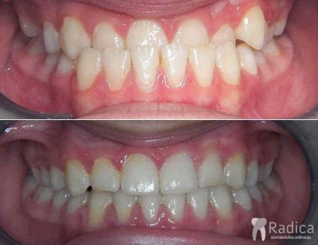 ortodontska-terapija-obrnuti-prijeklop-zuba-1
