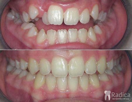 ortodontska-terapija-otvoreni-zagriz-headgear