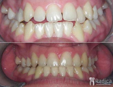 ortodontska-terapija