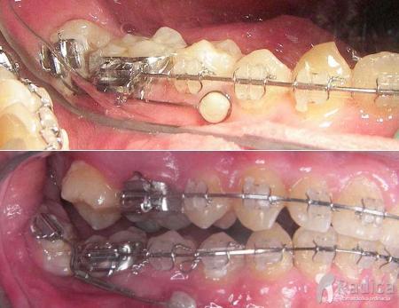 ortodontski-mikroimplantati-1