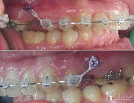 ortodontski-mikroimplantati