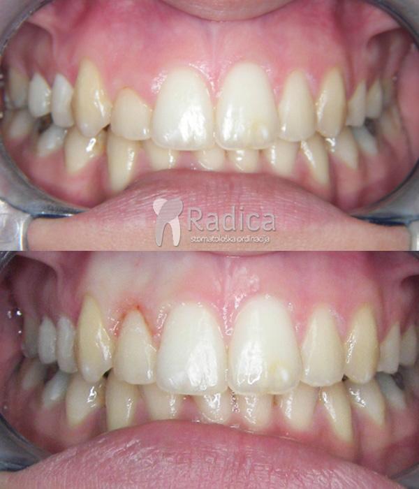 laser-gingivoplastika-prije-poslije