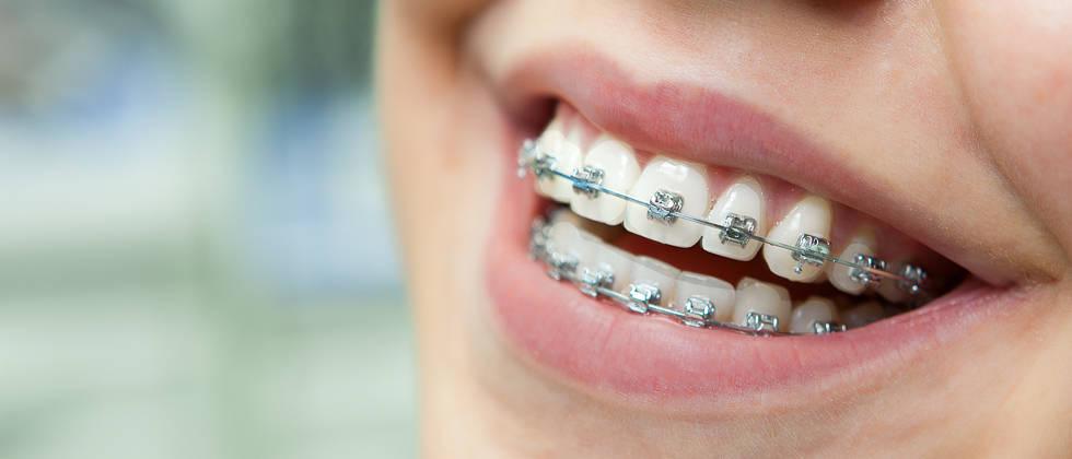 ortodoncija-aparatici