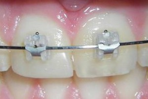 Fiksni ortodontski aparati