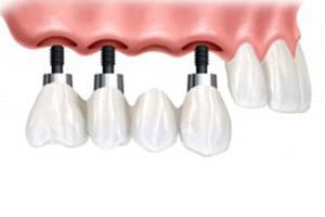 Implantologija – implantati