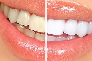 Izbjeljivanje zuba