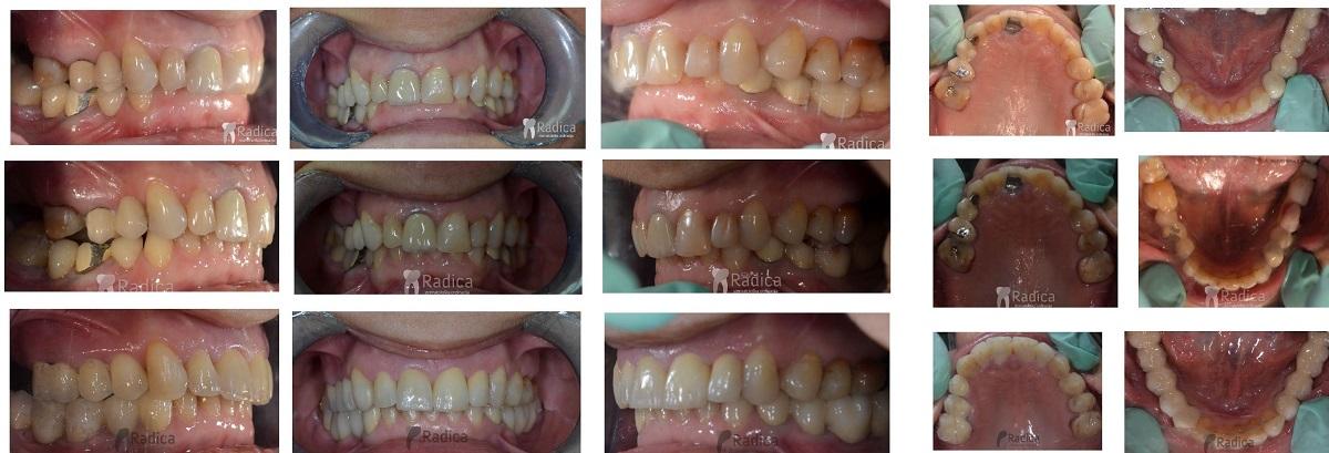 ortodontska terapija odrasli