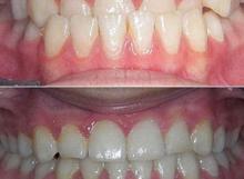 ortodontske terapije