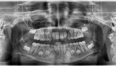 ortopantomogram