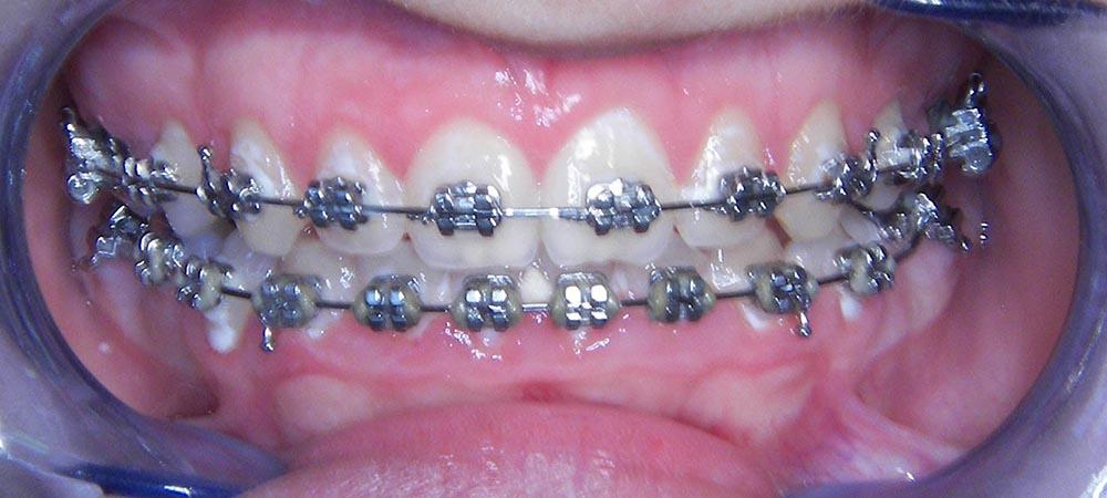 hiperplazija-gingive-nakon-laserskog-tretmana-1