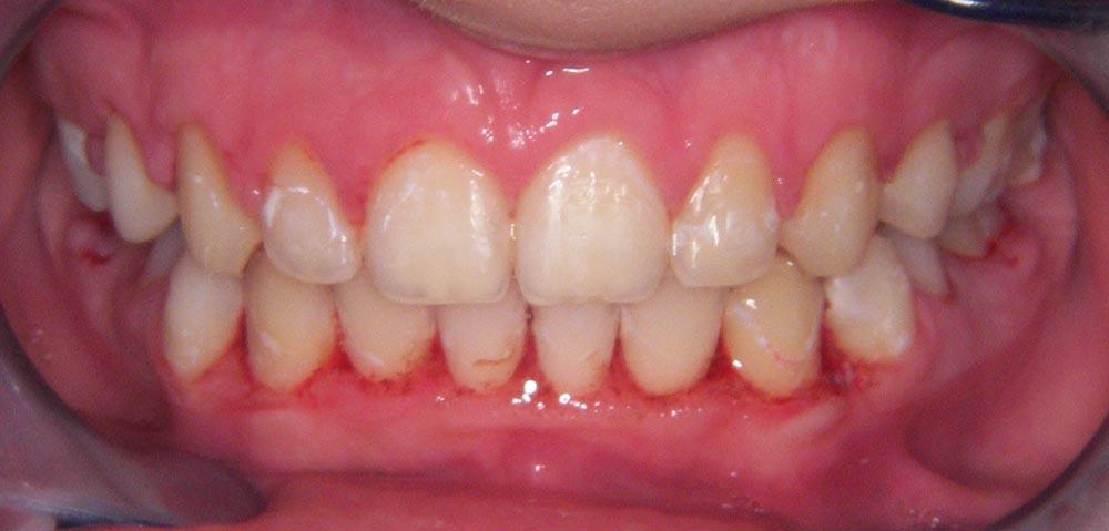 hiperplazija-gingive-ostecenja-zubi-zbog-lose-higijene
