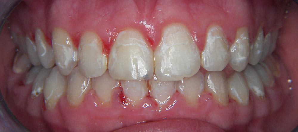 prijevremeni-prekid-ortodontske-terapije-nakon-ciscenja-zuba