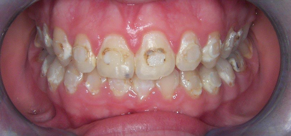 prijevremeni-prekid-ortodontske-terapije-ostecenje-cakline