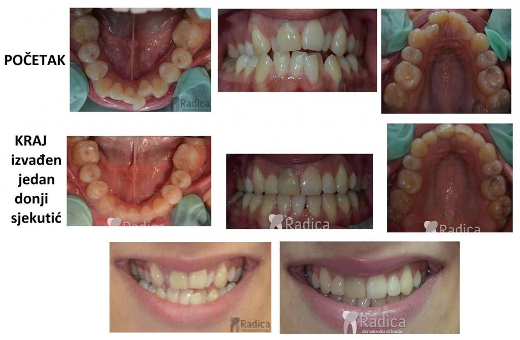 vađenje sjekutića ortodontska terapija