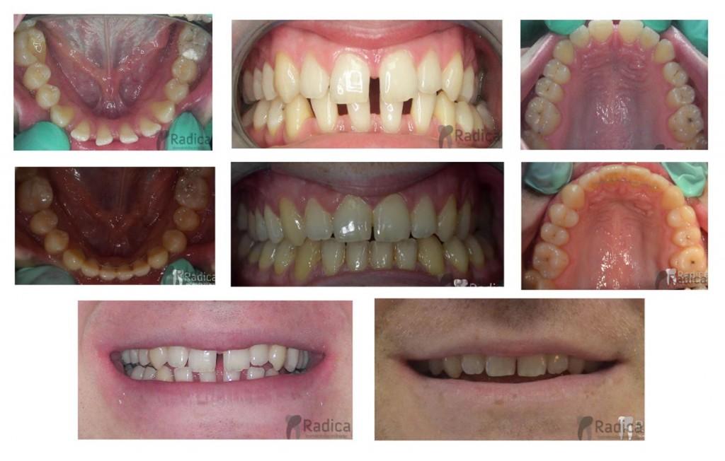 razmak među zubima