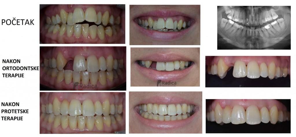 protetika resorpcija korijena zuba